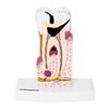 Model anatomiczny chorego zęba człowieka w skali 6:1