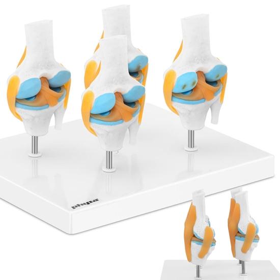 Model anatomiczny 3D stawu kolanowego ze zmianami chorobowymi 4 zmiany skala 1:2